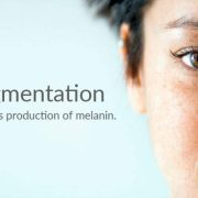 Got Hyperpigmentation? Here are 3 Easy Tips to Fight It!