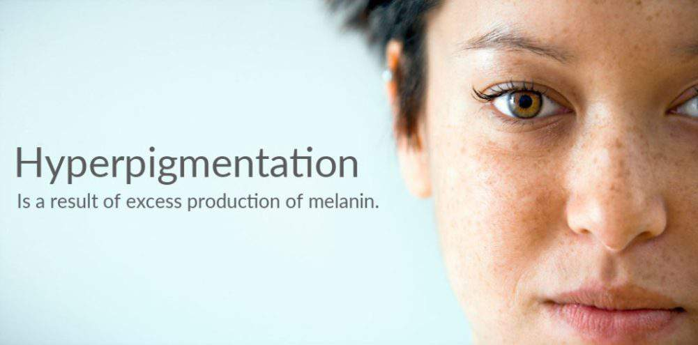 Got Hyperpigmentation? Here are 3 Easy Steps to Fight It!